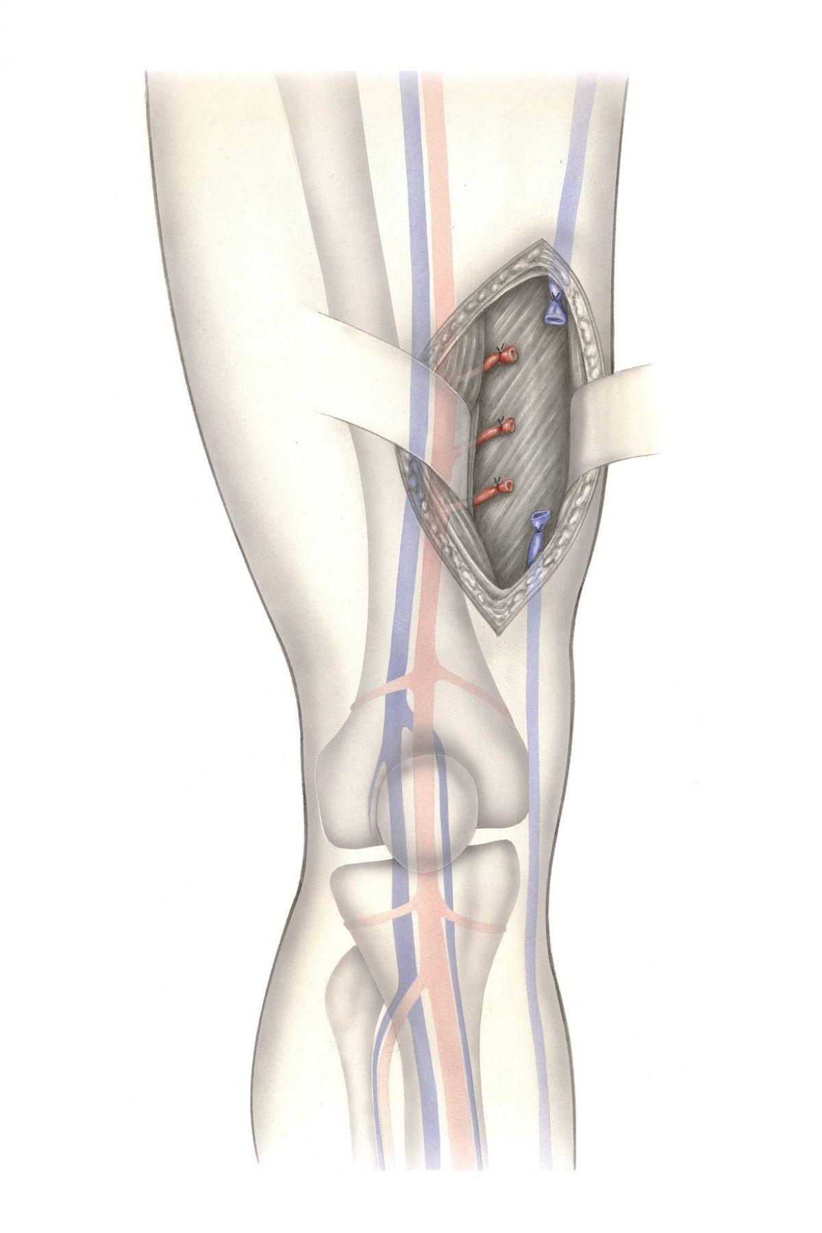 pierna con malformación vascular arterial
